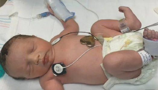 """Lynlee """"nasceu pela segunda vez"""" em 6 de junho, através de uma cesariana feita próximo do fim da gravidez. Ela veio ao mundo saudável e pesando 2,4 kg. Foto: Youtube/Reprodução"""